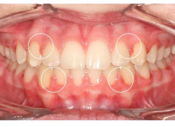 Photo parodontite agressive