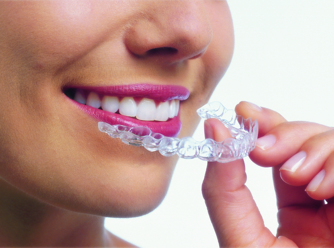 Broches Invisalign®